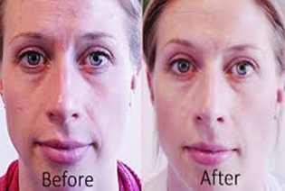 before-after 2-Facial