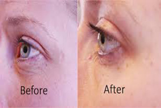 before-after-Facial